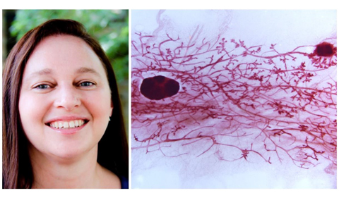 Dr. Dana Brantley-Sieders (left) and a mammary gland whole mount (right). Photos provided by Dr. Brantley-Sieders